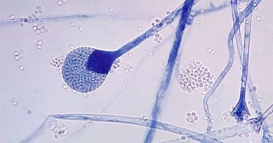 black fungus 6 key questions about rare fungal infection attacking covid 19 patients in india